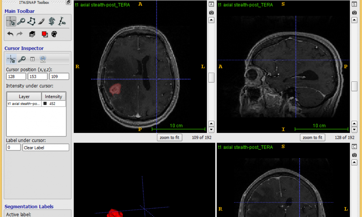 cranial radiographic imagery
